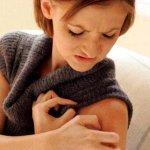 Аконит Гомеомед: реальное избавление от дерматита или обман?