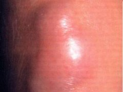 Диффузная лимфома и методы её лечения