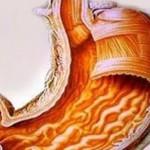 Что болезнь гастрит вызывает