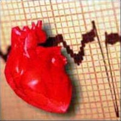 Низкое сердцебиение или брадикардия