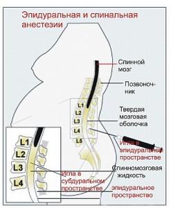 Как действует эпидуральная анестезия при кесарево?