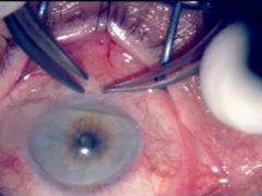 Глазная катаракта. Причины, симтомы, лечение