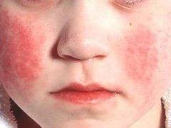 Опасна ли краснуха для взрослых?