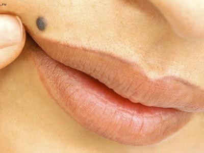 Папиллома на губе. Как от неё избавиться