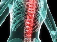 Как происходит лечение сколиоза позвоночника?