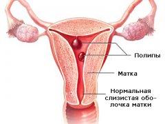 Гинекологические заболевания полип и эндометриоз