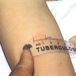 Очаговый туберкулез легких. Лечение