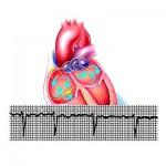 Диагностирование и лечение брадикардии сердца
