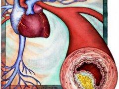 Как предотвратить заболевание атеросклероз