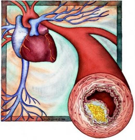 Атеросклероз сосудов головного мозга-рецепты зож