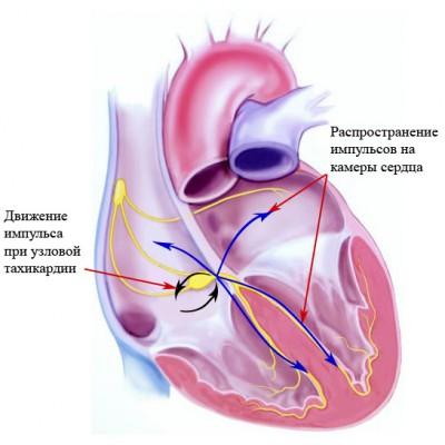 Узловая тахикардия: методы лечения