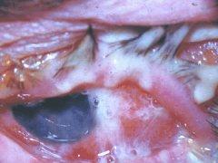 Конъюнктивит бактериальный и его лечение