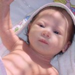 Синдром дауна у новорождённых