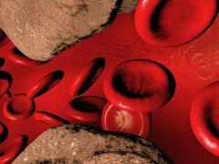Лечение атеросклероза артерий требует соблюдений нескольких правил