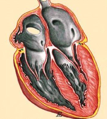 Рестриктивная кардиомиопатия. Меры профилактики