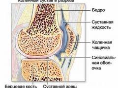 Предупреждаем болезни коленного сустава