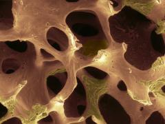 Рак кости и метастазы, симптомы и лечение