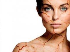 Трещины на коже: причины появления и методы лечения