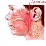 Причины аденоидов