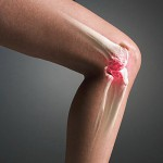 Причины артроза и его симптомы