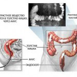 Ирригоскопия. Отзывы об ирригоскопии кишечника
