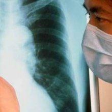 Туберкулез в роддоме и во время беременности