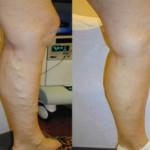 Лечение варикозного расширения вен лазером