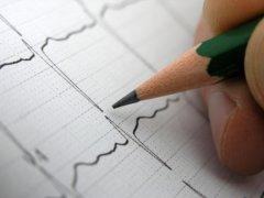 Как определить симптомы аритмии сердца