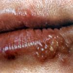 Осложнения герпеса у женщин