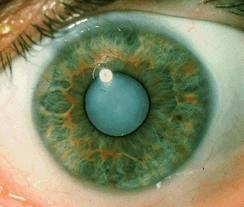 катаракта хрусталика