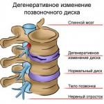 Почему берут в армию с остеохондрозом