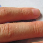 Отчего появляется сыпь на пальцах рук