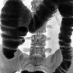 Рентген кишечника как способ диагностики его заболеваний