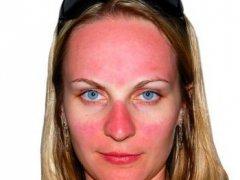 Солнечный ожог лица