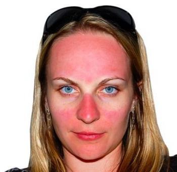 Горит кожа лица от маски