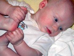 Экссудативно катаральный диатез у детей