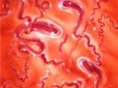 Как заболевание сифилис описать