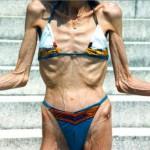 Как довести себя до анорексии. А нужно ли?