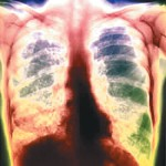 Определение туберкулеза: 6 способов