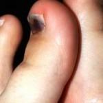 Лечение ушиба пальца