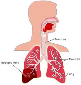 Почему виды пневмонии так различны