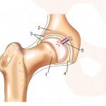 Лечение боли в тазобедренном суставе