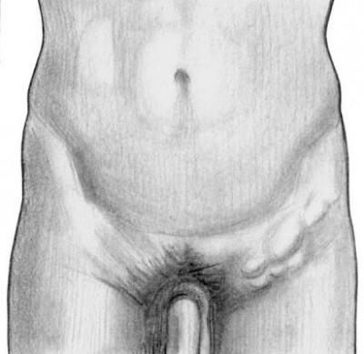 Лимфоузлы в организме человека