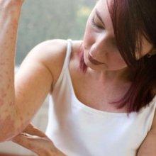Мазь для лечения дерматита