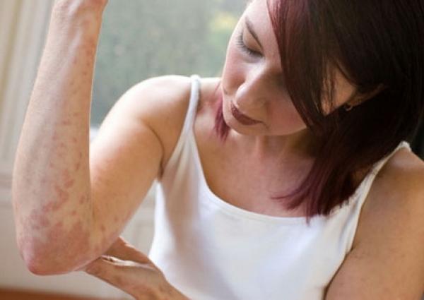 lechenie-dermatita