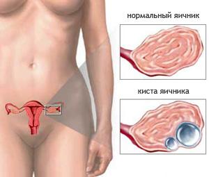 Киста в гинекологии