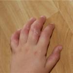 Волдыри на руках