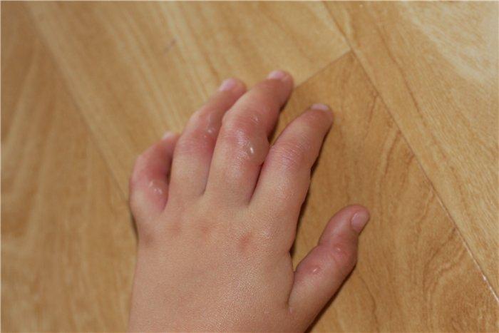 Прыщик на коже у ногтя