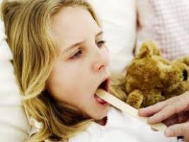 кашель при ангине