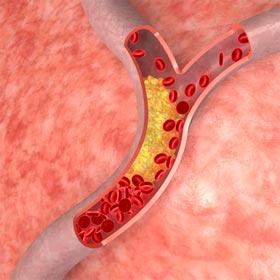 Какой холестерин у женщин нормален